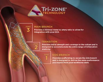 Tri-Zone Technology
